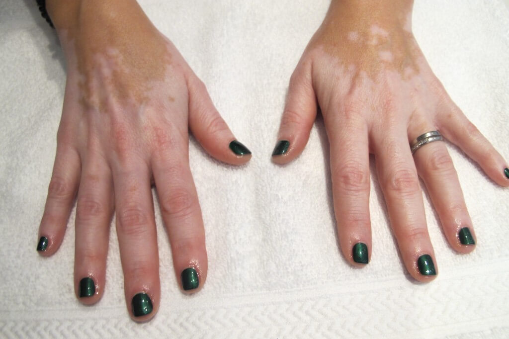 brun utan sol vitiligo