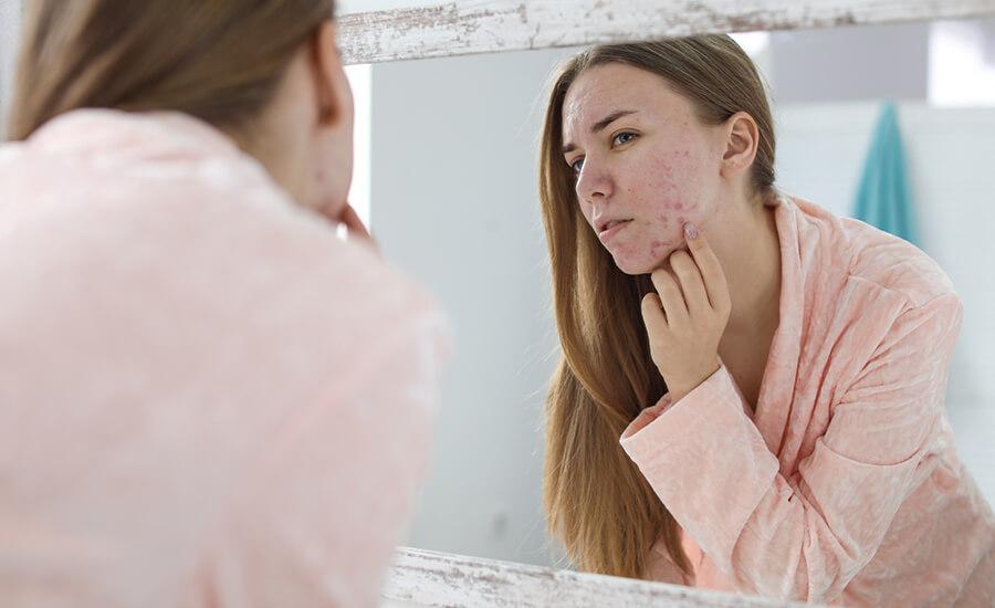 balansera hormoner acne