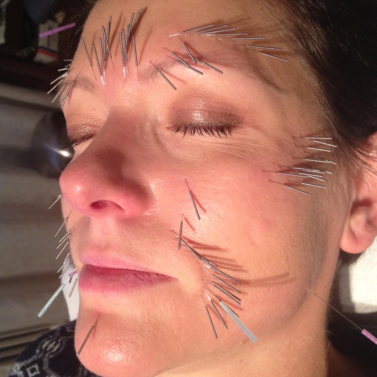 nålar i ansiktet