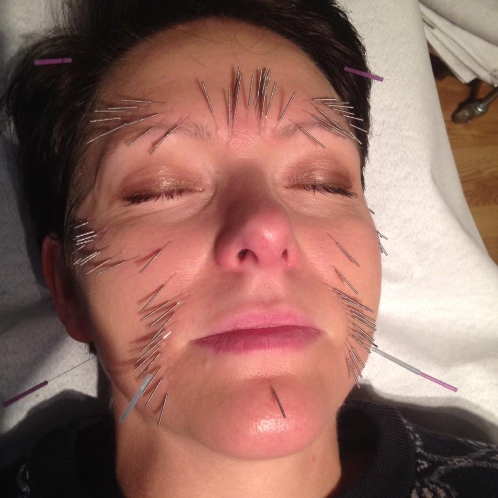 Hannah Sjöström kosmetisk akupunktur