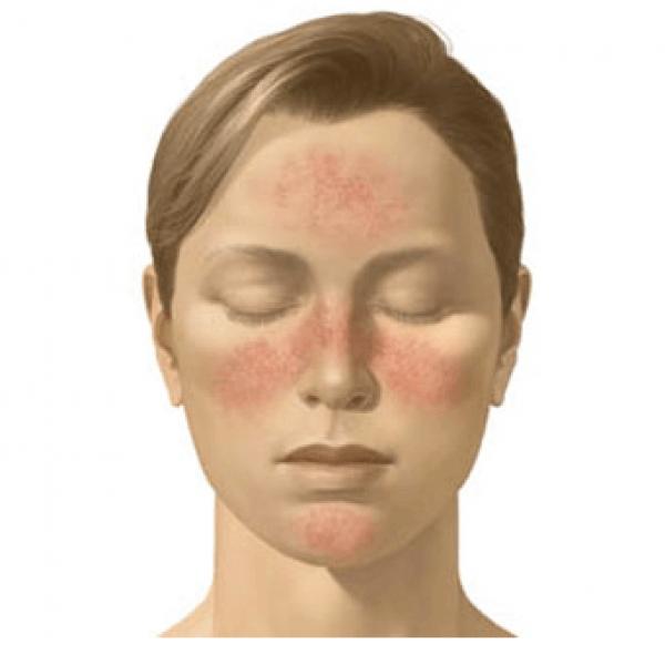 rödflammig hud efter dusch